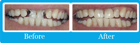 smile comparison at evans dental